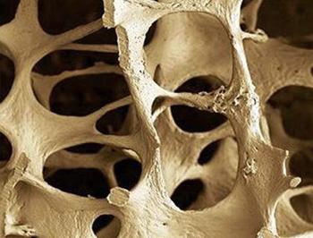 Detección Precoz de Osteoporosis