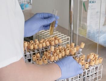 Determinación de Indicadores Bioquímicos
